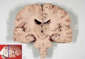 Human_brain_frontal_(coronal)_section_description_2
